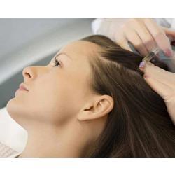 ปลูกผมดก โดยแพทย์ !! Meso Thick Hair & Hair Loss Therapy